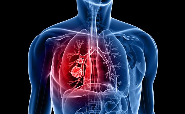 Poumon et coeur