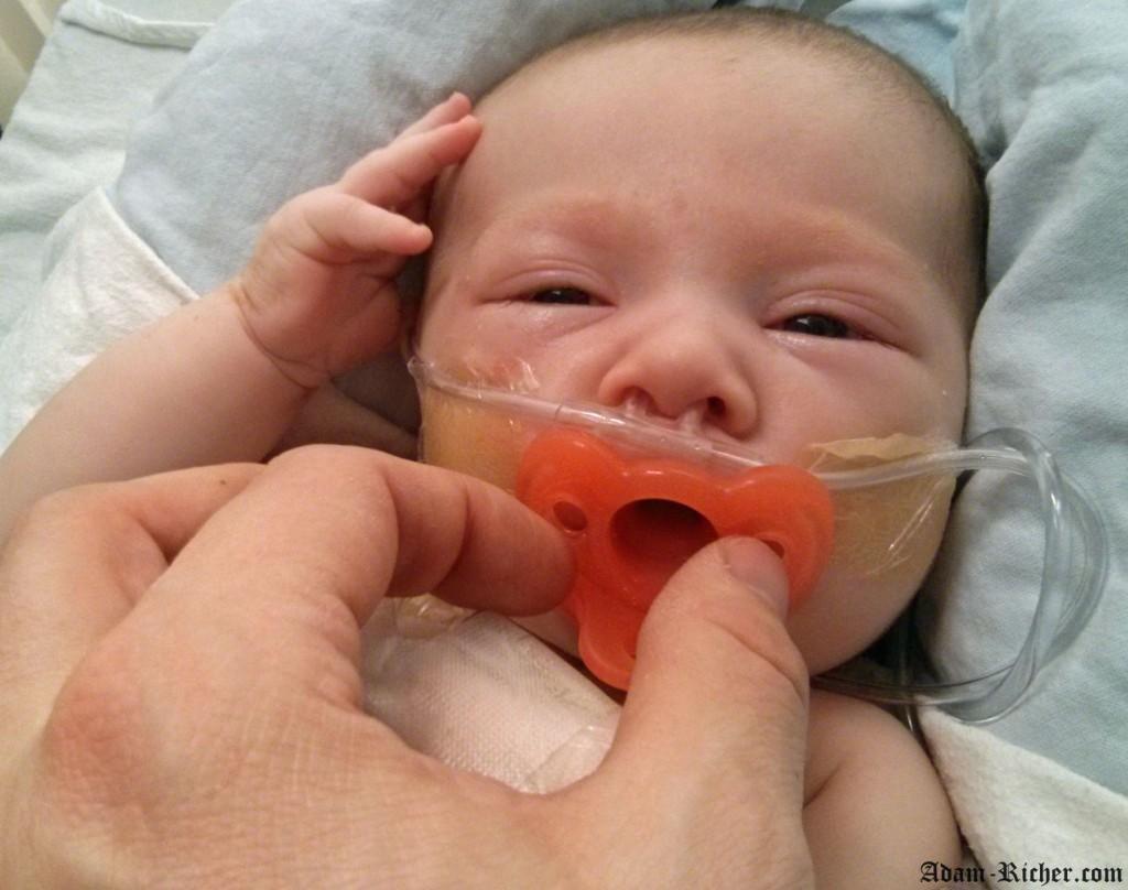Adam aux soins instensifs. Il a des difficultés respiratoires et il est très enflé après son cathéter cardiaque