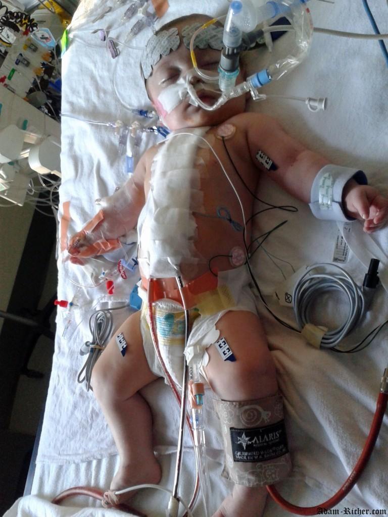 Adam quelques heures après sa chirurgie cardiaque