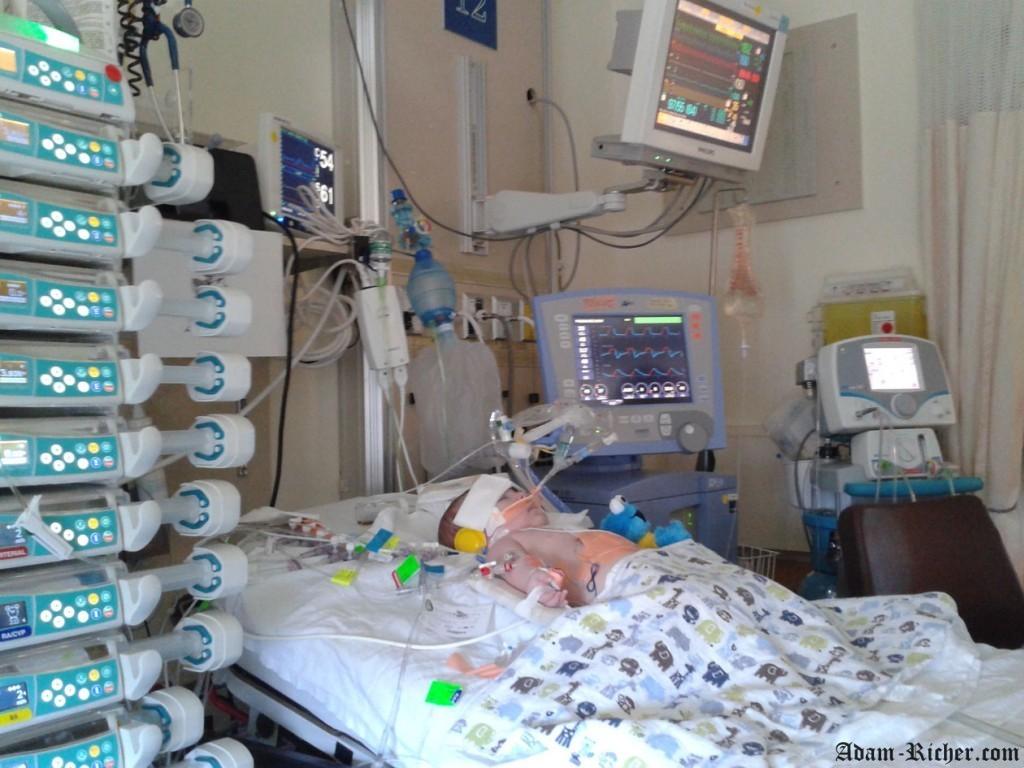 À gauche : Le rack de médicaments et narcotiques, les machines distribuent les médicaments par interveineuses. À gauche: le ventilateur qui lui permet de respirer et à côté la machine NO pour traiter l'hypertension pulmonaire